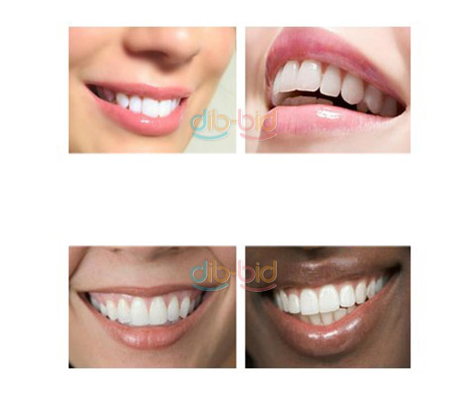 how to clean teeth whitening trays